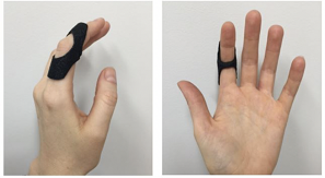 Oval 8 splint for dorsal.png